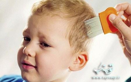 علائم شپش موی سر