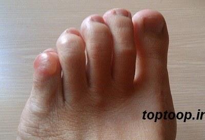 تعبیر خواب تاول زدن پا