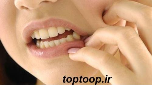 تعبیر خواب کرم خوردگی دندان