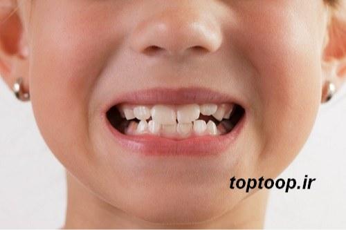 تعبیر خواب کرم خوردن دندان مرده