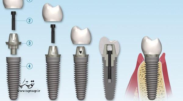 روش ایمپلنت دندان