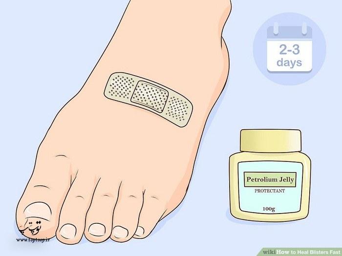 درمان فوری تاول