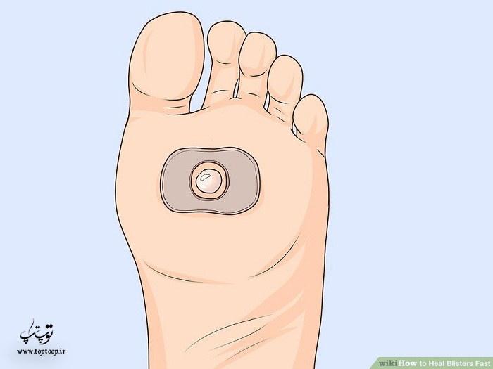 روش درمان تاول کف پا