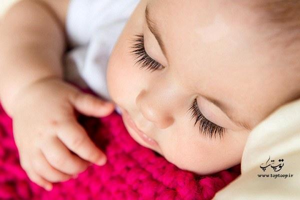برای سفید شدن پوست نوزاد بعد از تولد