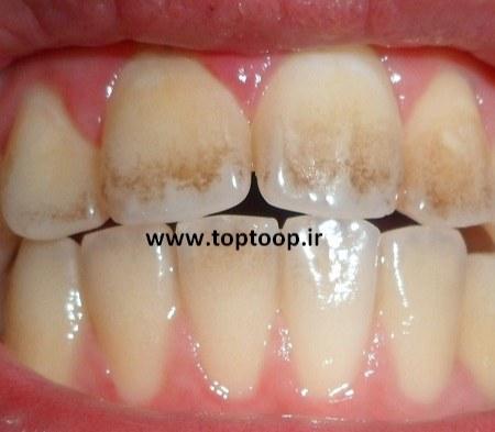 تعبیر خواب کثیفی و جرم لای دندان