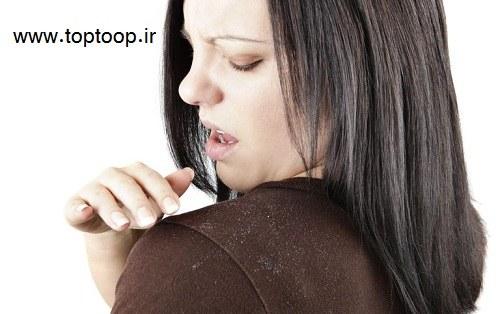 عامل اصلی ایجاد شوره ی سر