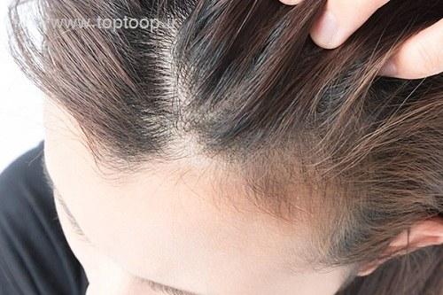 از کجا بفهمیم موهای ما شوره می زند