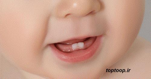 تعبیر خواب سفید شدن دندان های نوزاد