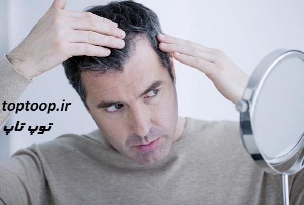 تعبیر خواب سفید شدن موی سر