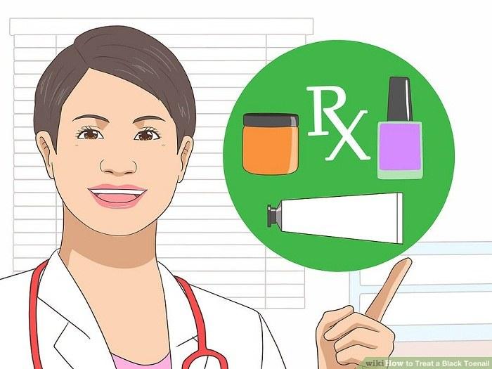 از دکتر بخواهید داروهای ضد قارچ موضعی تجویز کند