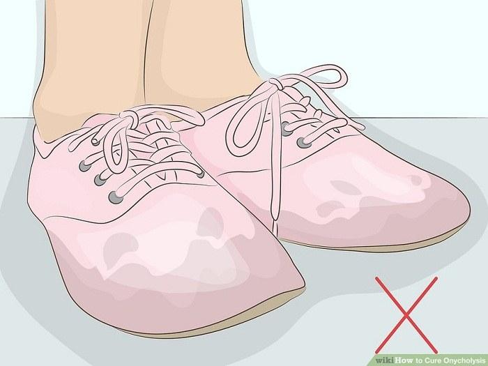 اجتناب از پوشیدن کفش های خیس و مرطوب
