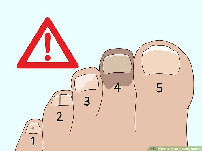 درمان ملانوما در ناخن پا