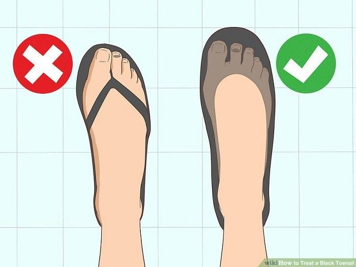 از وارد شدن دیگر جراحات به ناخن پا جلوگیری کنید
