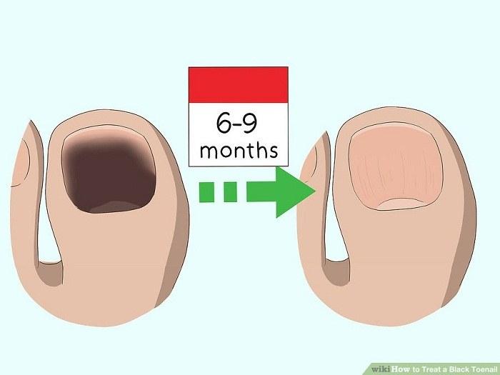 ادامه دادن درمان ها تا چند ماه