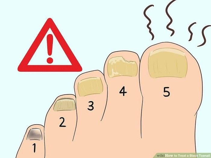 درمان عفونت قارچی ایجاد شده در ناخن پا