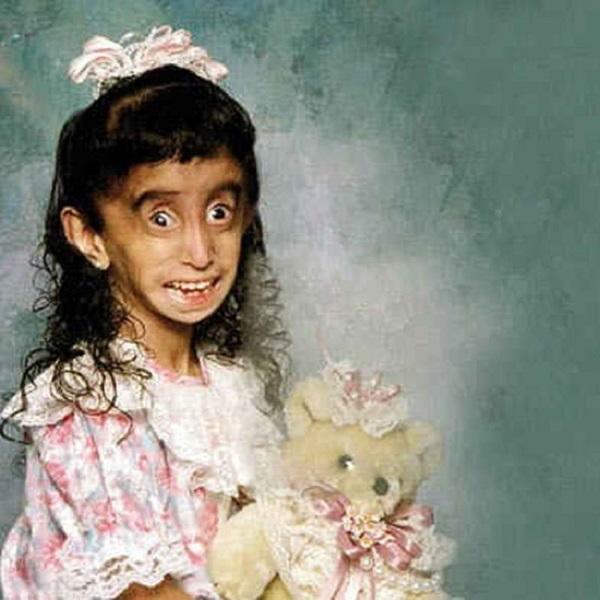 عکس دختر زشت خنده دار